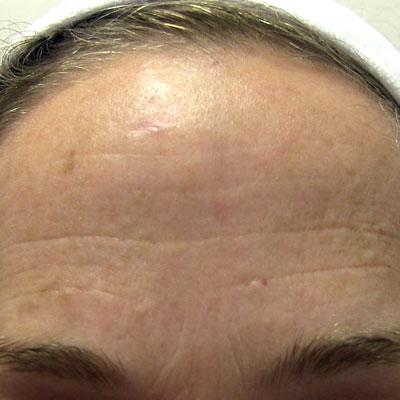 wishpro appareil anti ride lyon soin anti aging creme beauté institut