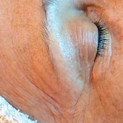 wishpro appareil anti ride lyon vieillissement soin anti aging creme beauté institut